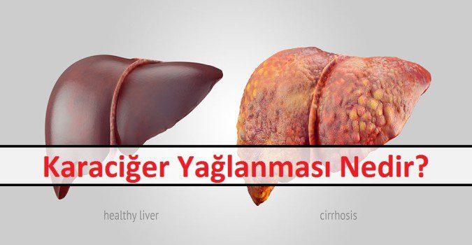 Karaciğer Yağlanması Nedir
