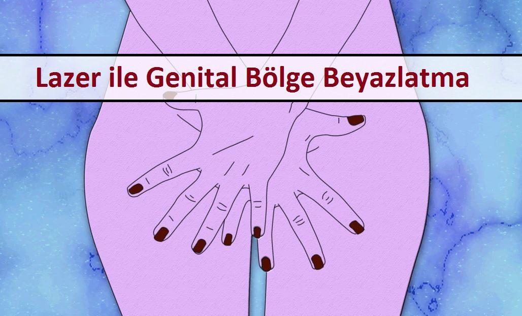 Lazer ile Genital Bölge Beyazlatma