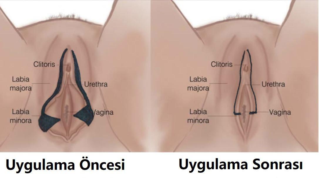 Labioplasti Kimlere Uygulanabilir