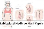 Labioplasti Nedir ve Nasıl Yapılır