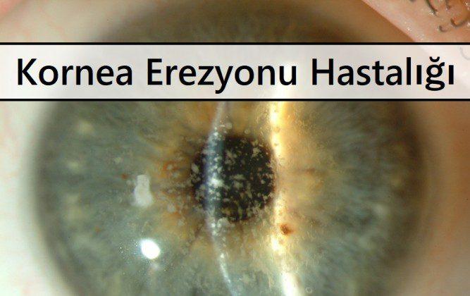 Kornea Erezyonu Hastalığı