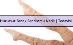 Huzursuz Bacak Sendromu Nedir | Belirtileri ve Tedavisi