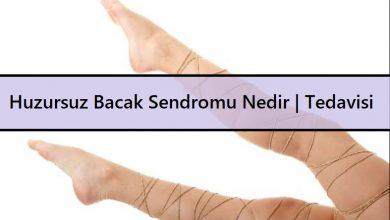 Huzursuz Bacak Sendromu Nedir Tedavisi