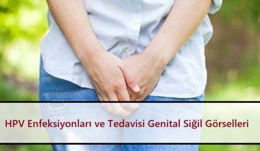 HPV Enfeksiyonları ve Tedavisi | Genital Siğil Görselleri