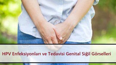 HPV Enfeksiyonları ve Tedavisi Genital Siğil Görselleri