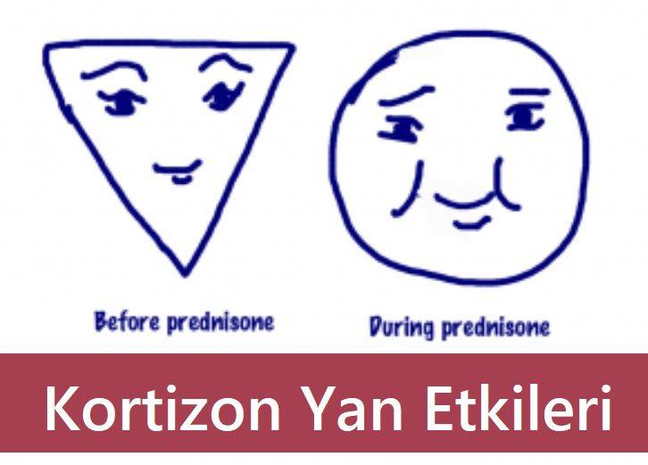 Kortizon Yan Etkileri