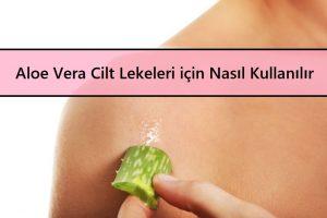 Aloe Vera Cilt Lekeleri için Nasıl Kullanılır