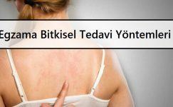 Egzama Bitkisel Tedavi Yöntemleri