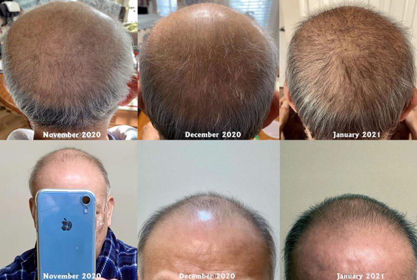 Neo Hair Lotion Kullanan