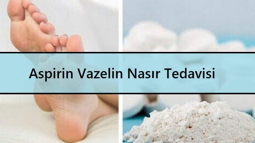 Aspirin Vazelin Nasır Tedavisi