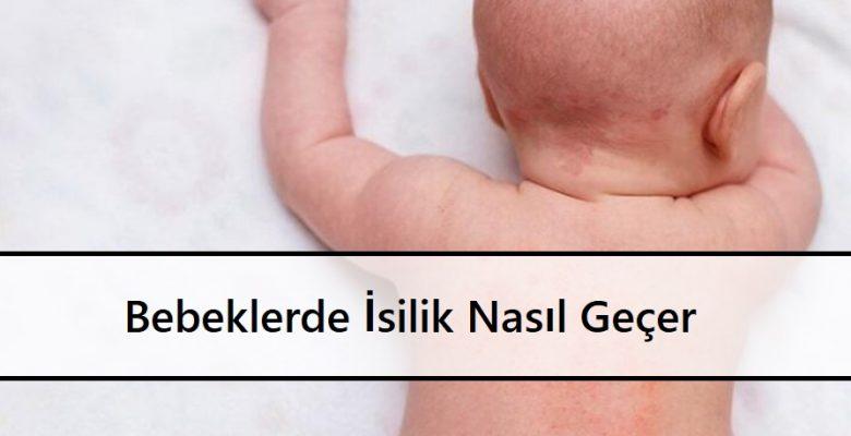 Bebeklerde İsilik Nasıl Geçer