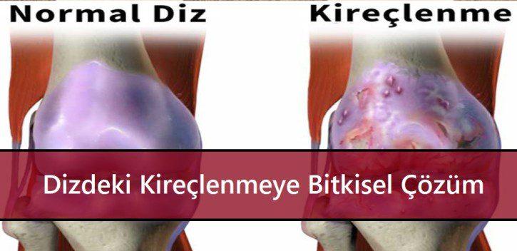 inflamație articulară pe braț decât pentru a trata articulatii imobile