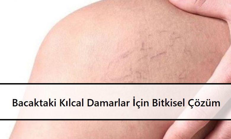 Bacaktaki Kılcal Damarlar İçin Bitkisel Çözüm