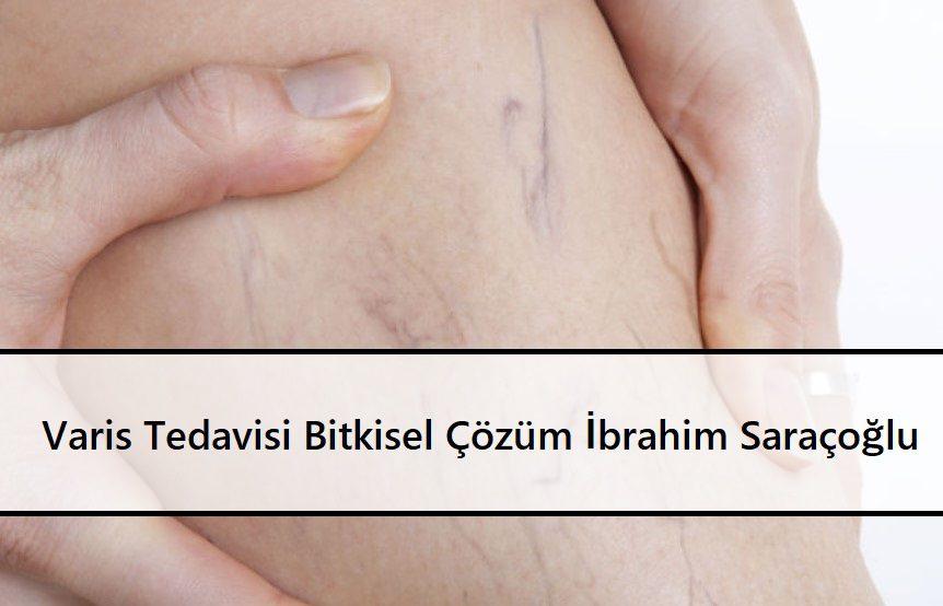 Varis Tedavisi Bitkisel Çözüm İbrahim Saraçoğlu